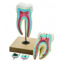 Model zęba trzonowego z 3 fazami próchnicy, 6-cz., 8x